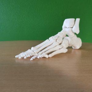 Hallux Valgus foot