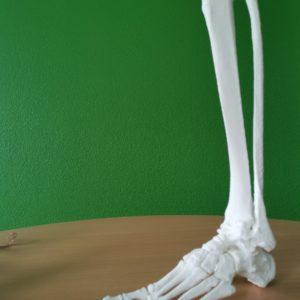 Pied et tibia arthrosés